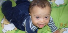 f or Down Syndrome Is NonInvasive e