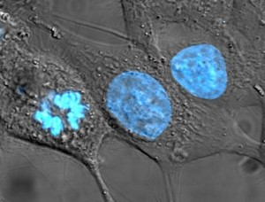 HeLa cells (via Wikimedia Commons)