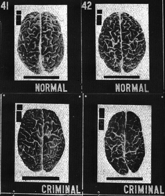 Bad brains: Did my DNA make me do it?