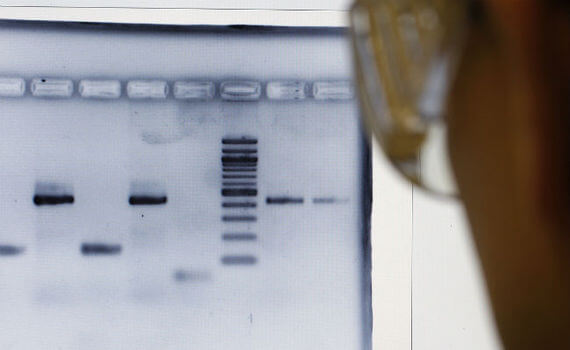 Ask a geneticist: Race and IQ?