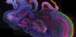brain organoid x
