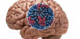 brain virus x
