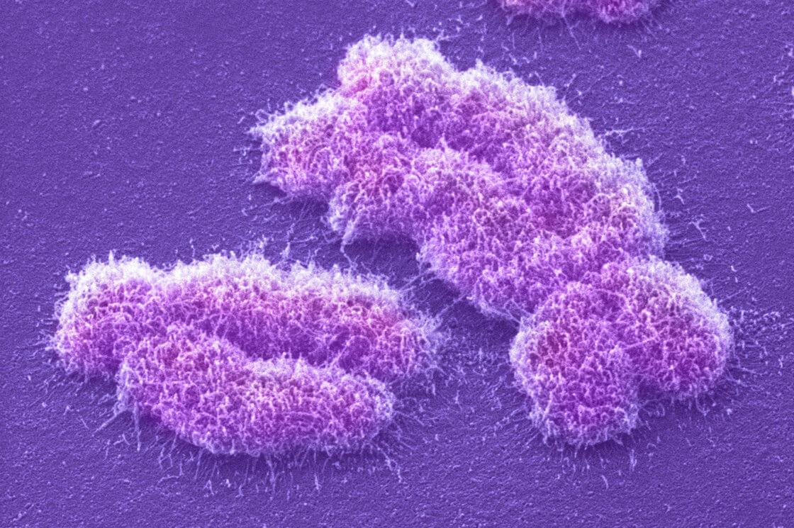 chromosome slide b ec e e beba b e c s c