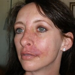 Staph Infection on face