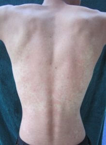 The back of an Asian man experiencing alcohol flush. Credit: James Heilman, MD