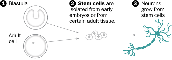 Neural stem-cell transplants