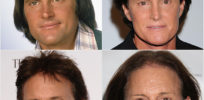 Bruce Jenner's transgender 'coming out': He's not alone, but is it in the genes?