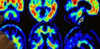 Test for plaque in brain might clue future Alzheimer's risk