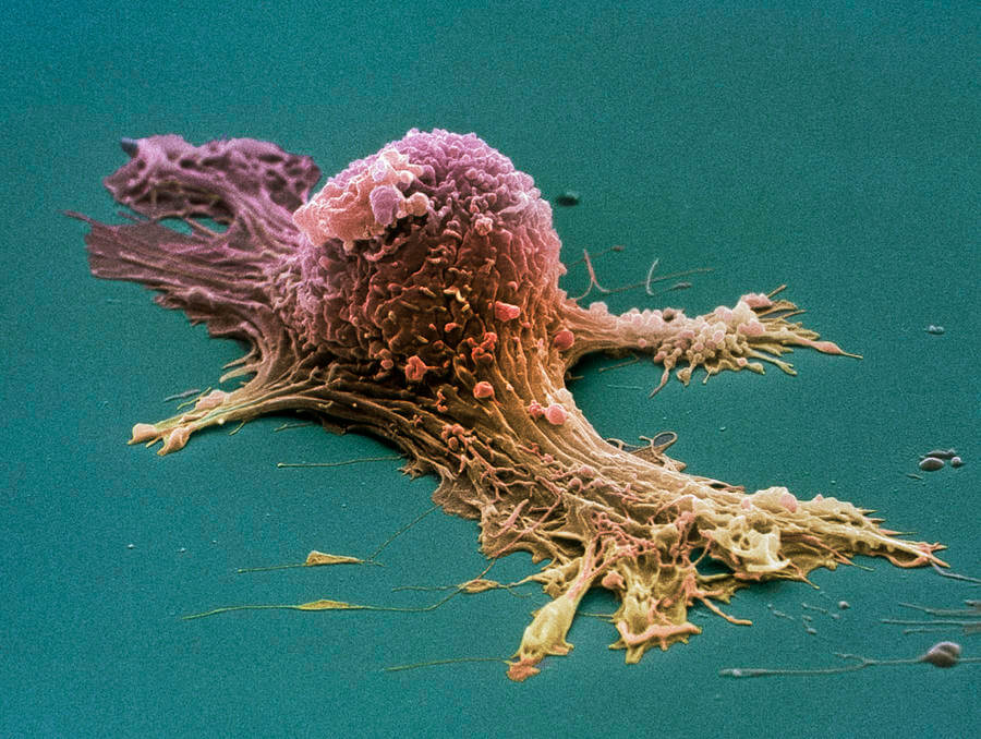 ovarian cancer cell sem steve gschmeissner