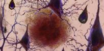 Predicting Alzheimer's: 31-gene test may offer strongest risk assessment