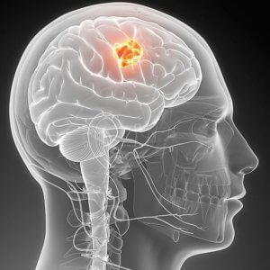 is brain glioblastoma cancer x