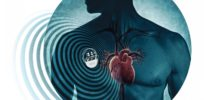 Pacemakers made out of human stem cells may replace electronic models in future