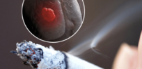 Unraveling science mystery of how smoking causes lung cancer: It's the basal stem cells