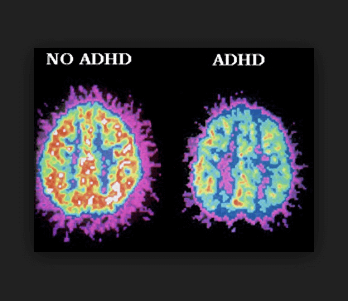 Adhd More Prevalent Among Poor >> Does Poor Motivation Or Bad Parenting Cause Adhd Studies