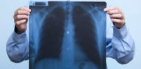 Lung, pancreatic cancers linked to critical gene mutation