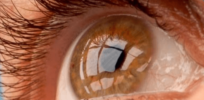 Woman's vision improved after first successful stem cell (iPS) treatment