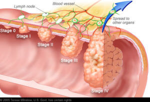 winslow rm illustration of colorectal cancer stages