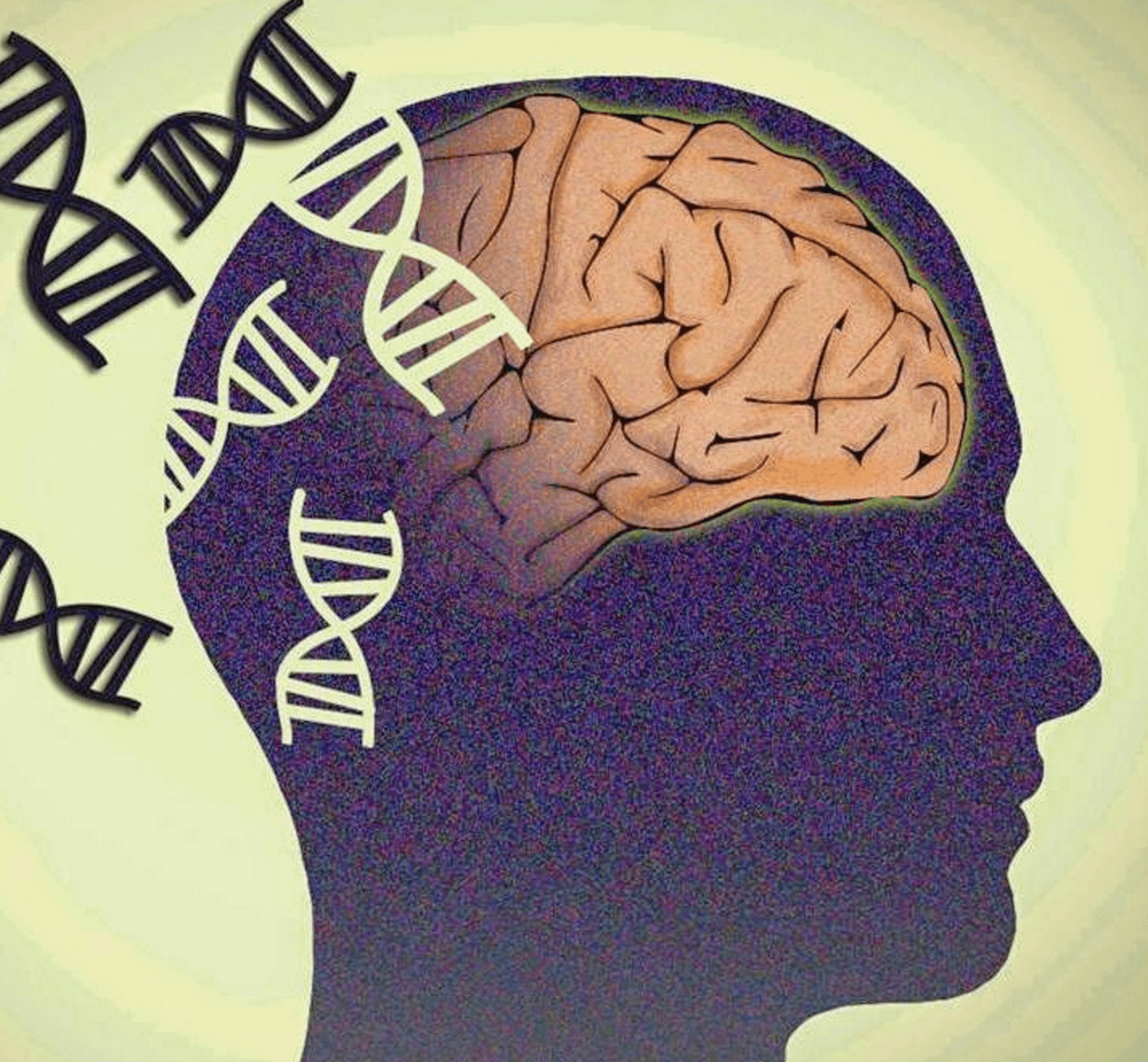 bipolar disorder and genetic predisposition (physorgcom) -- genetic testing may rise to a new level with the findings of indiana university school of medicine researchers whose prototype for laboratory testing for bipolar disorder appears today in the online edition.