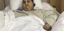 How 1100 pound woman's rare genetic disorder helps unravel mystery of obesity