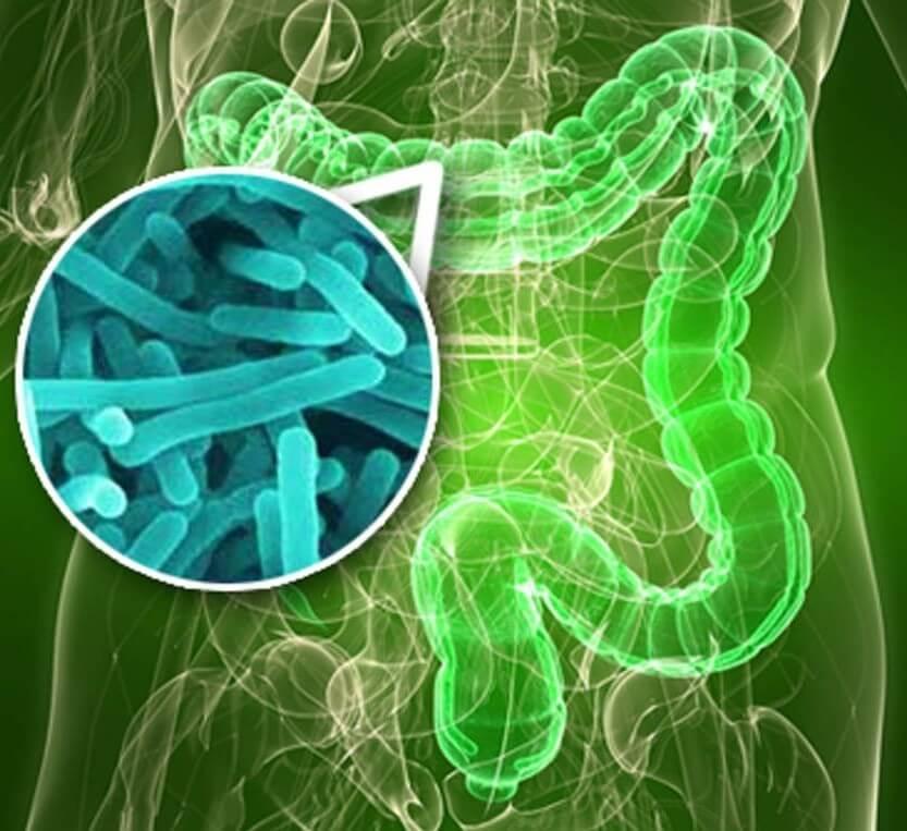 Гнилостный дисбактериоз