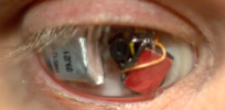 Eyeborg: Man has video camera inserted to replace damaged eye
