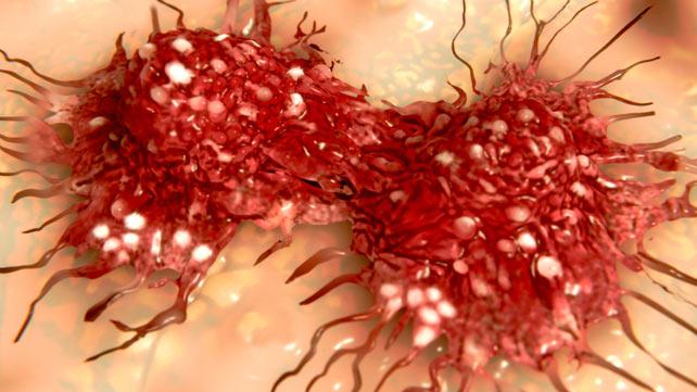 x Rare Subtypes of Ovarian Cancer