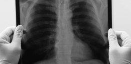 DAILY GULLI LUNG CANCER POST e