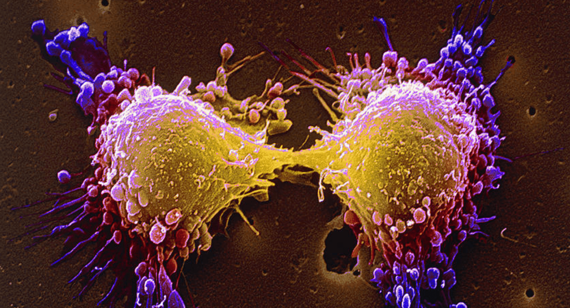 'Synthetic lethality' targets cancer cells by damaging vulnerable DNA