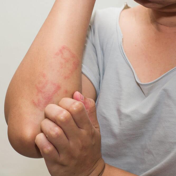 itchy skin eczema