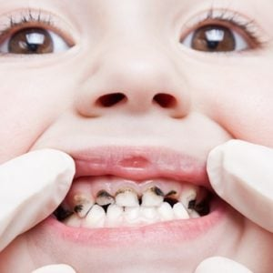 child teeth decay