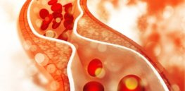 Can gene tweaking lower our cholesterol? Using CRISPR and nanotechnology in mice