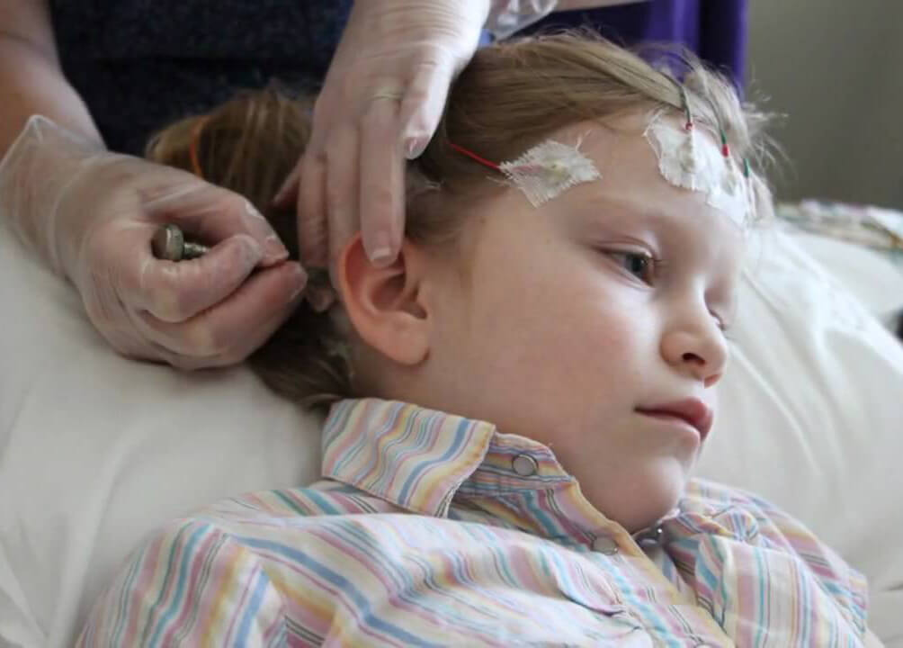 Genetic screening of children with epilepsy could lead to better treatments