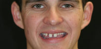 Restoring smiles? Research targets mutation linked to missing, deformed teeth