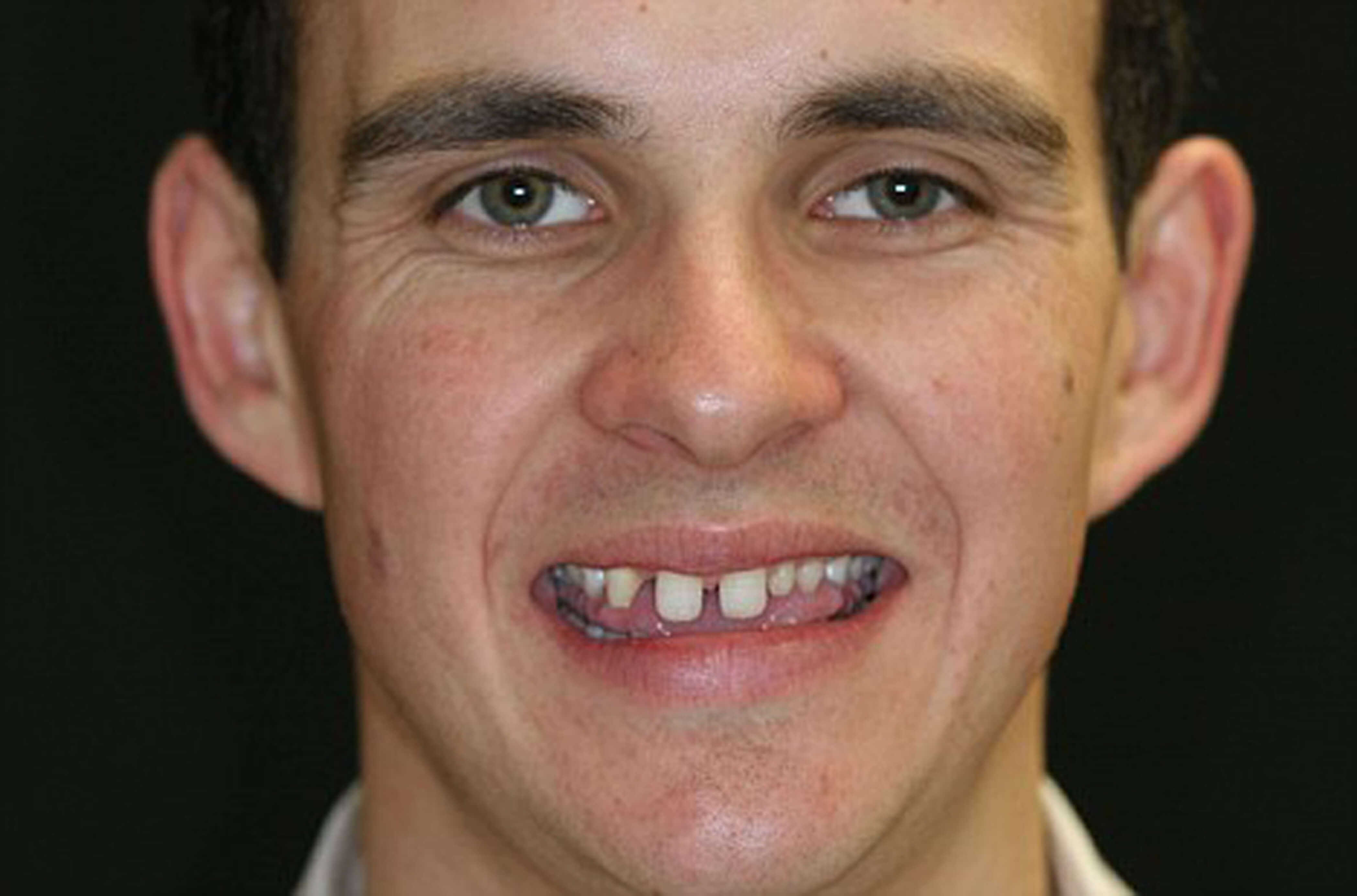 restoring smiles research targets mutation linked to missing