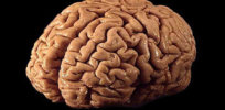brain 12 19 17 1