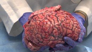 brain 12 19 17 2
