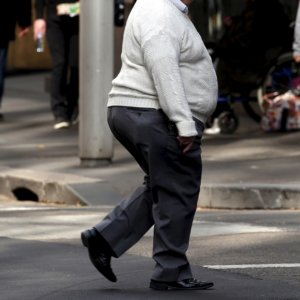 obesity 1 10 18