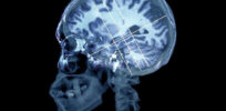 brain in alzheimers disease zephyr