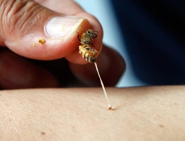 jun abelha pica braco de um paciente na fazenda de abelhas em silang nas filipinas joel magsaysay usa o veneno das abelhas para curar pacientes com doencas com