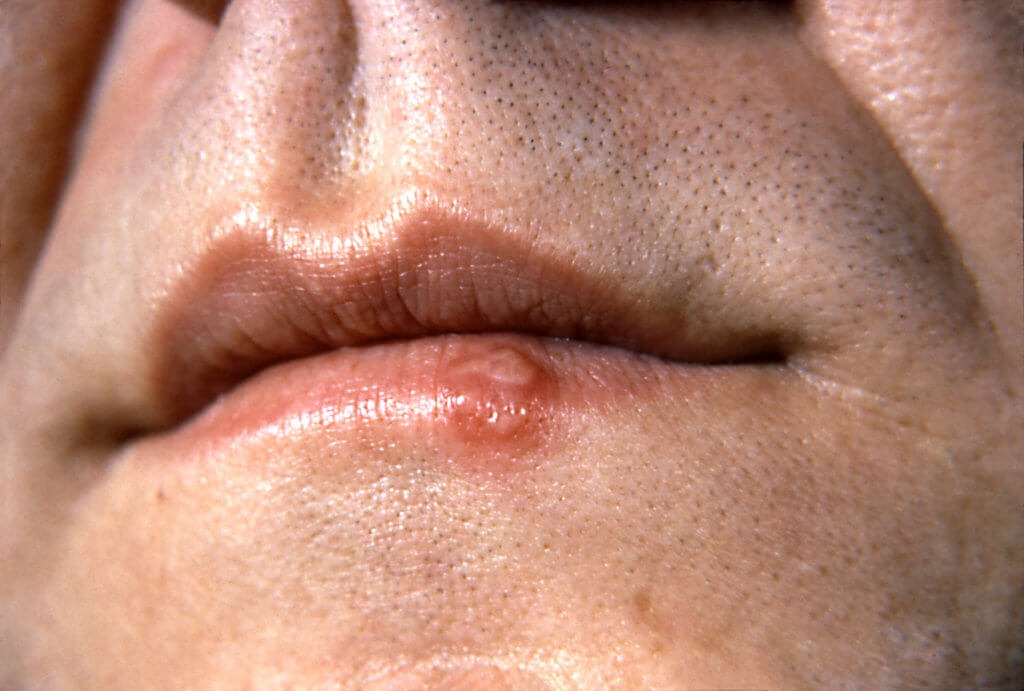 m secondary herpes simplex science photo library high