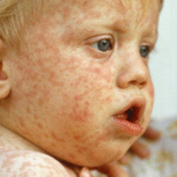 3-9-2018 measles_wide
