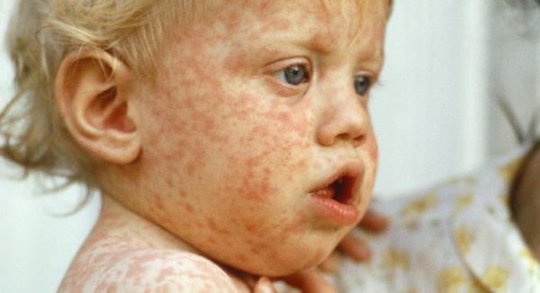 measles wide