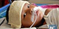 Brain inflammation–encephalitis–in children linked to single gene mutation