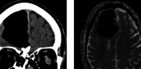 brain 3 15 18