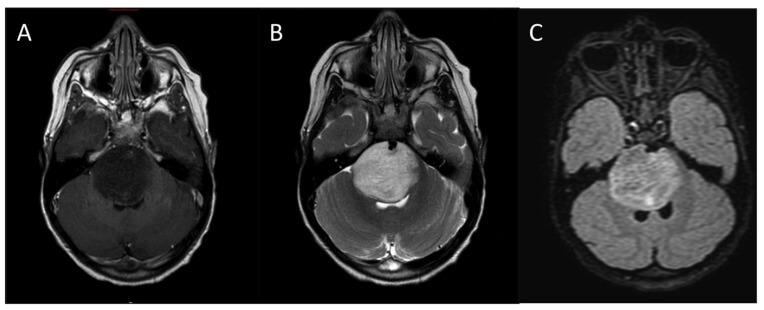 Typica4-18-2018 l-MRI-appearance-of-DIPG-A-T1-weighted-post-contrast-B-T2-weighted-C-FLAIR