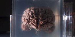 brain in jar getty x