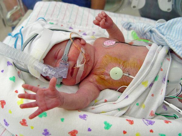 newborn baby hospital 327327