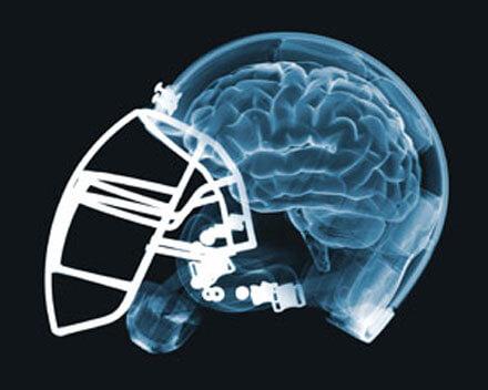 7-18-2018 football-brain