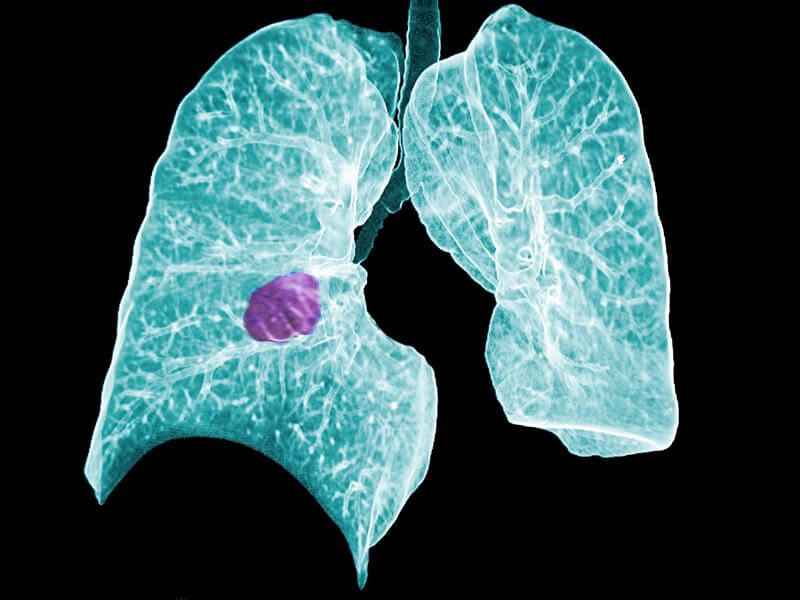 8-22-2018 dt_150206_ct_scan_lung_cancer_800x600