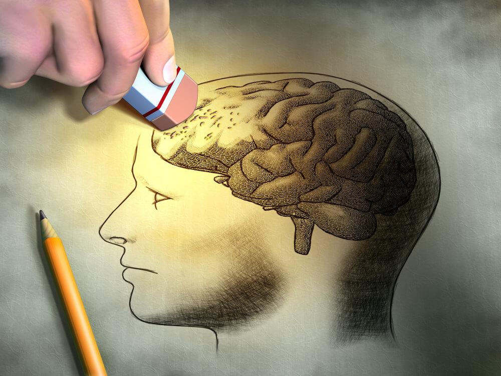 Alzheimer's 8 3 18